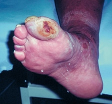 Ischemic foot ulcer