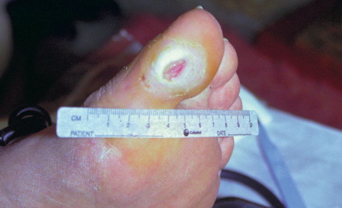 neurophatic foot ulcer