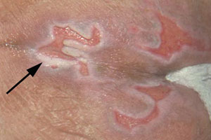 Periwound moisture-associated dermatitis