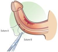 Peyronies Disease - Coloplast US