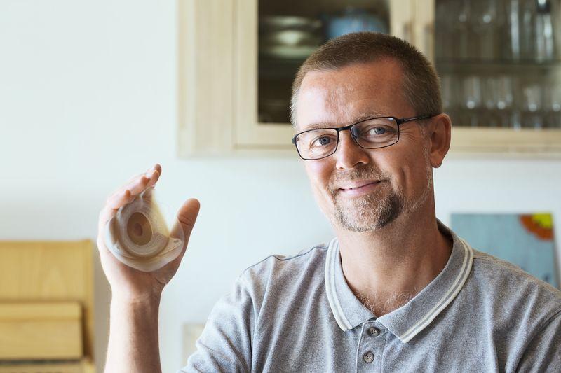 Meet Soren, ileostomy since 1986 and SenSura® Mio Convex user